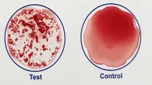 Un test sanguin rapide et à domicile pourrait confirmer la vaccination contre le COVID-19 en quelques minutes